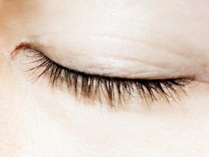 眼瞼内反症(逆さまつ毛)