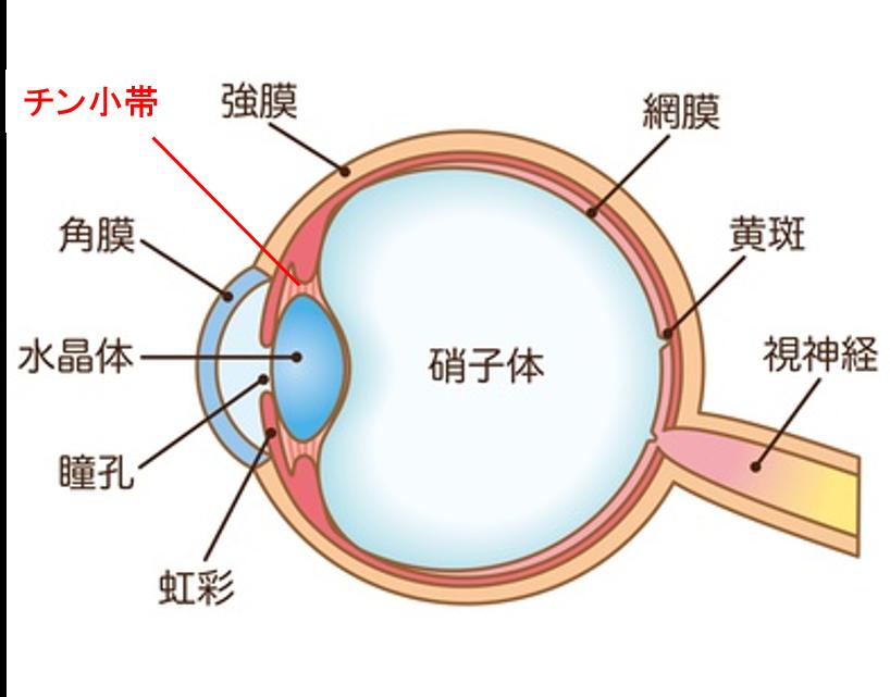 眼内レンズ脱臼のレンズ交換