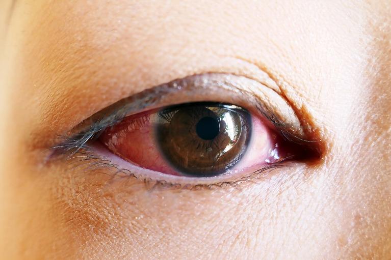 腫れる が 赤ちゃん 目