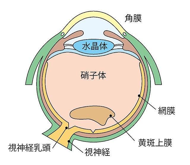 網膜前膜(黄斑前膜)